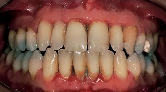 几种常见的口腔疾病,看牙科去私立口腔医院好还是公立医院好?