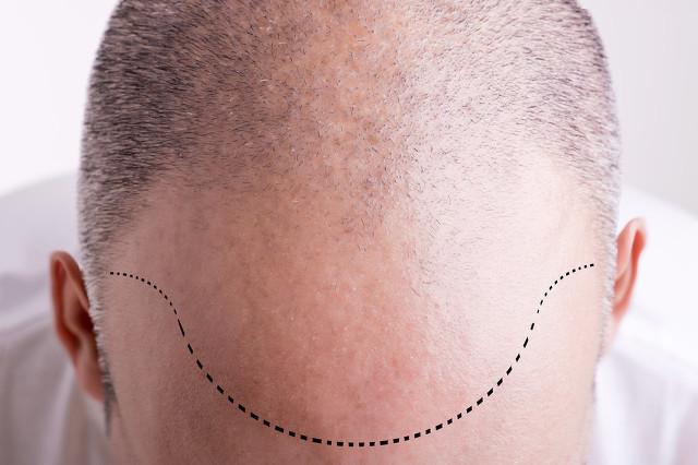 植发生发一般需要多少钱,植发后多久能看到效果,还会脱落吗 ?
