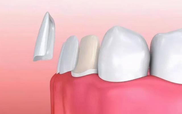 如何避免隐性消费?口腔医院牙齿矫正价格表奉上,记得收藏