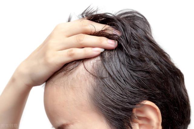 植发后期会脱落吗,植发生发有没有后遗症?